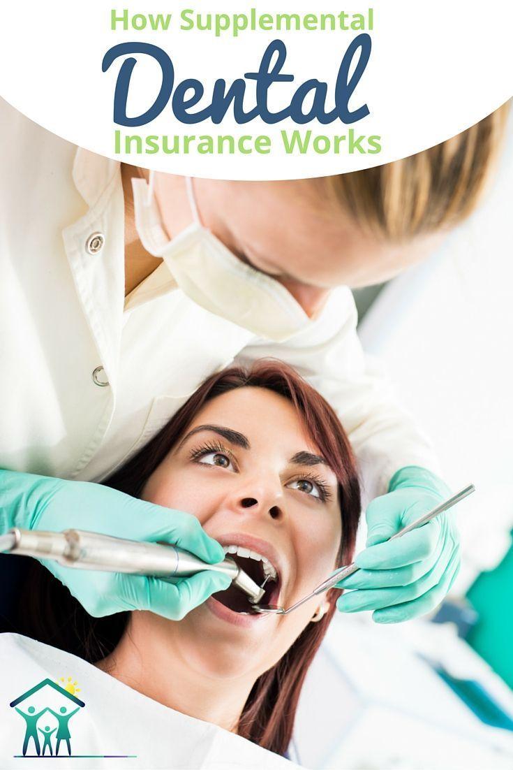 How supplemental secondary dental insurance plans work