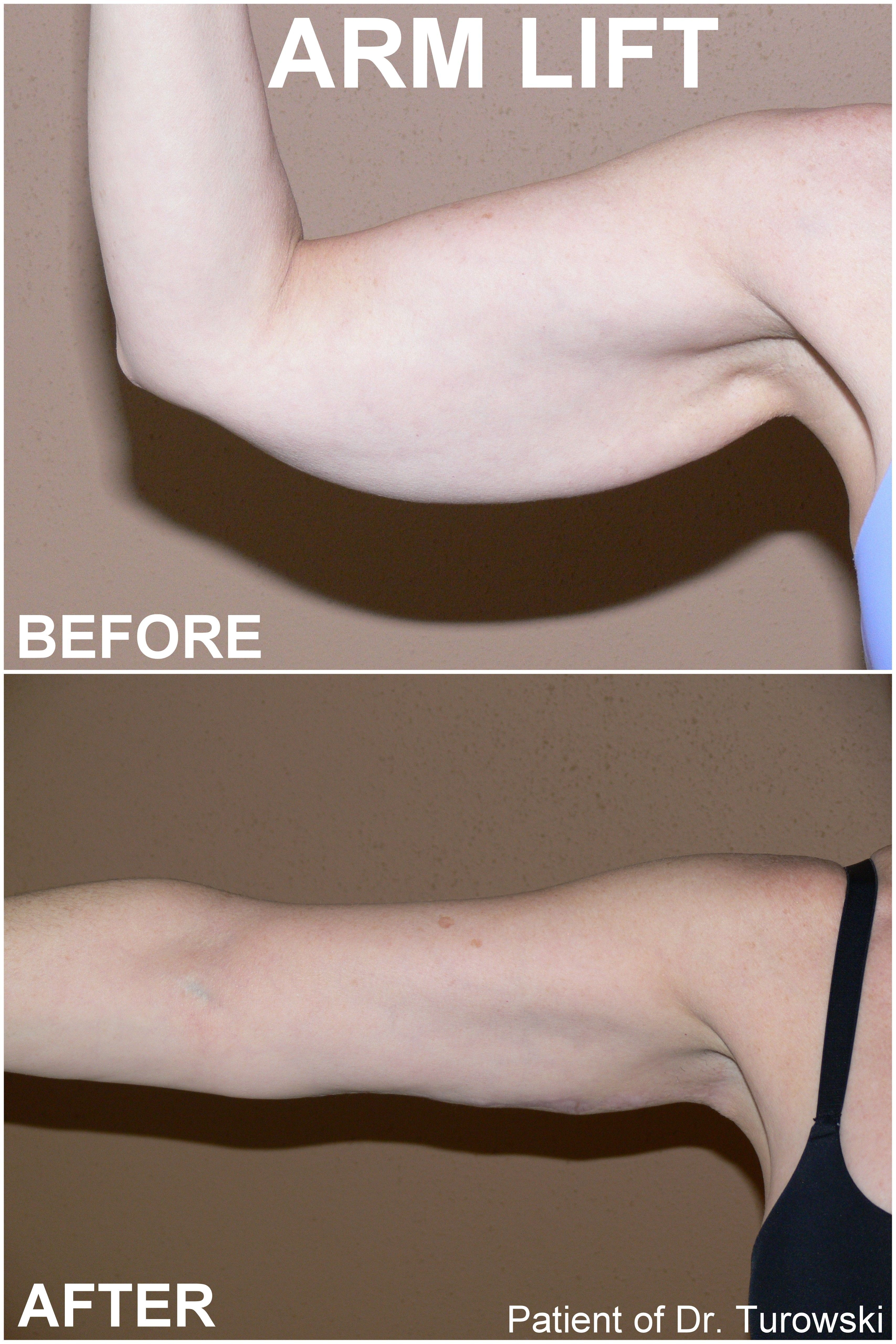 More Info And Photos Http Drturowski Com Arm Lift Before And After Pictures Body Lift Surgery Skin Removal Surgery Arm Lift Surgery