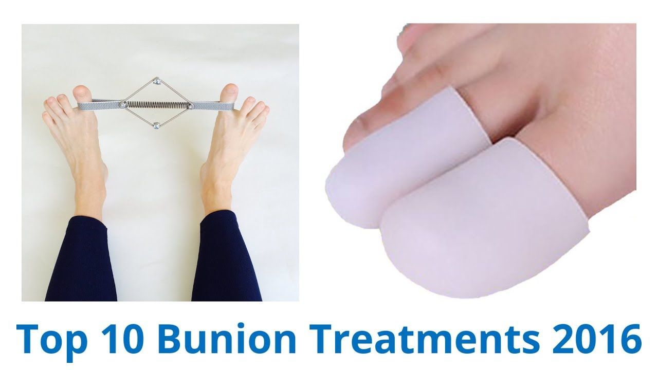 how to prevent bunions on feet