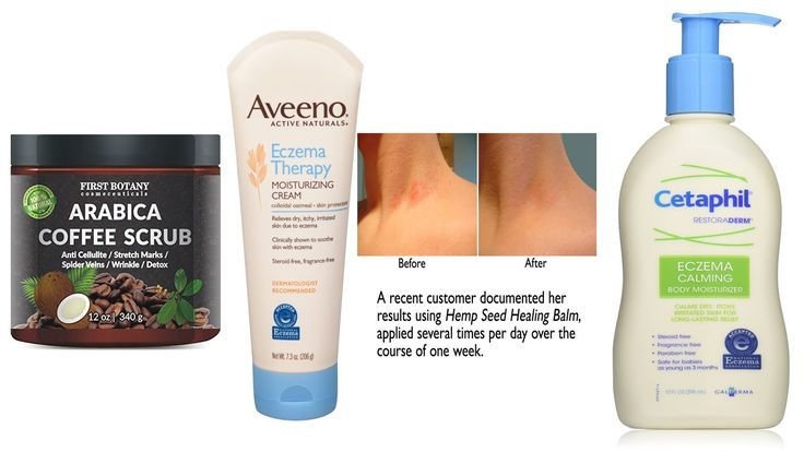 Top 5 Best Eczema Cream Reviews 2016 Best Lotion For