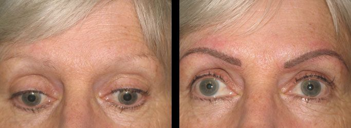 eyebrow+tattoo+before+and+after+pictures | Before and ...