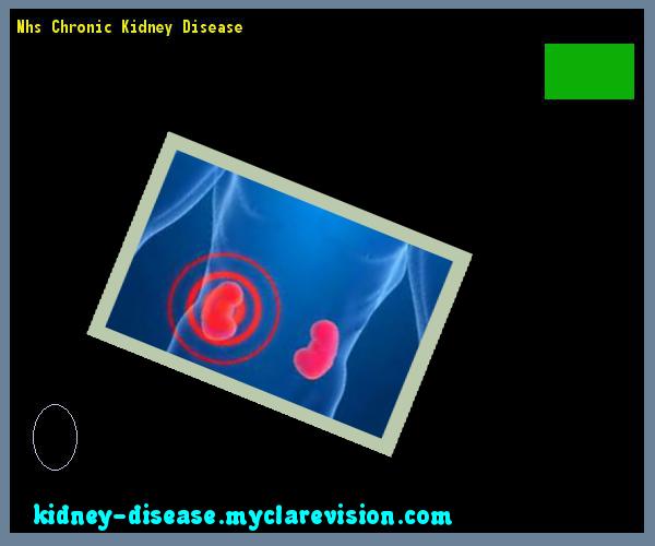 Nhs Chronic Kidney Disease 101241 Start Healing Your