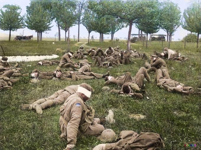 Gassed Australian soldiers at a Casualty Clearing Station near Bois de l'Abbee, 27 May 1918 - Australische Soldaten nach einem Gasangriff an einem Verbandplatz in der Nähe von Bois de l'Abbee, 27. Mai 1918 (Imperial War Museum) - (Quelle, Originalbild und mehr auf http://t1p.de/independent-gasangriff-australier)