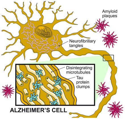 dementia and alzheimer s disease including care nursing di To differentiate alzheimer's disease from vascular dementia or  and care plan prognosis alzheimer's disease is a  aging-alzheimer's association.
