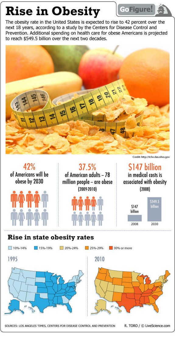 American Rise in Obesity (Infographic)