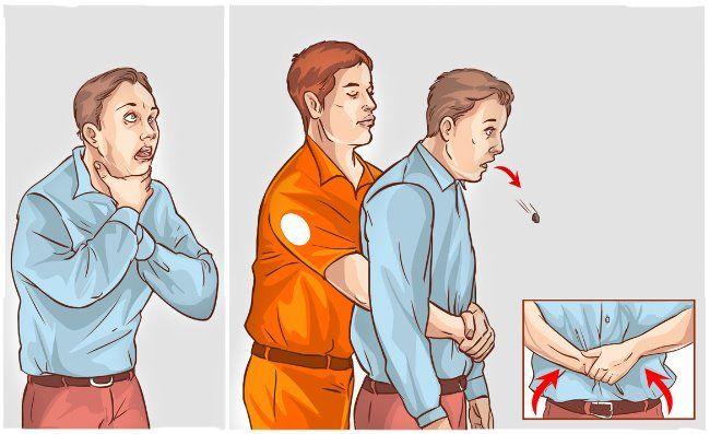 Puntos salvar vida - maniobra heimlich