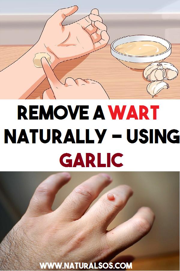 warts on hands garlic