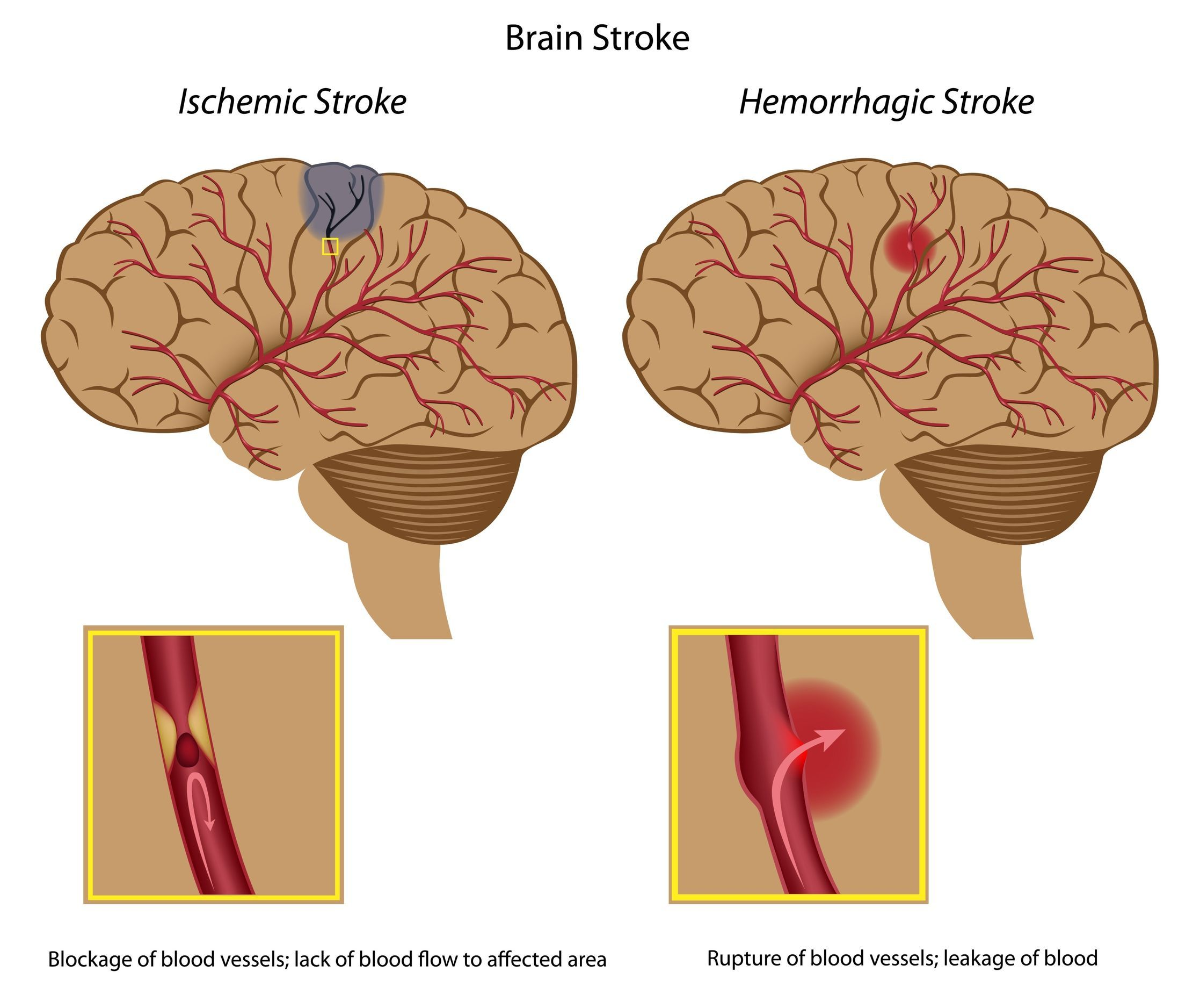 Study Of A Stroke Essential Oils Simple Natural Remedies Brain Stem On Diagram