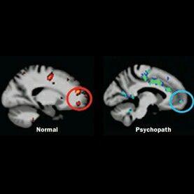 Normal Vs Psychopath Brain The Mask Of Sanity Psychopath