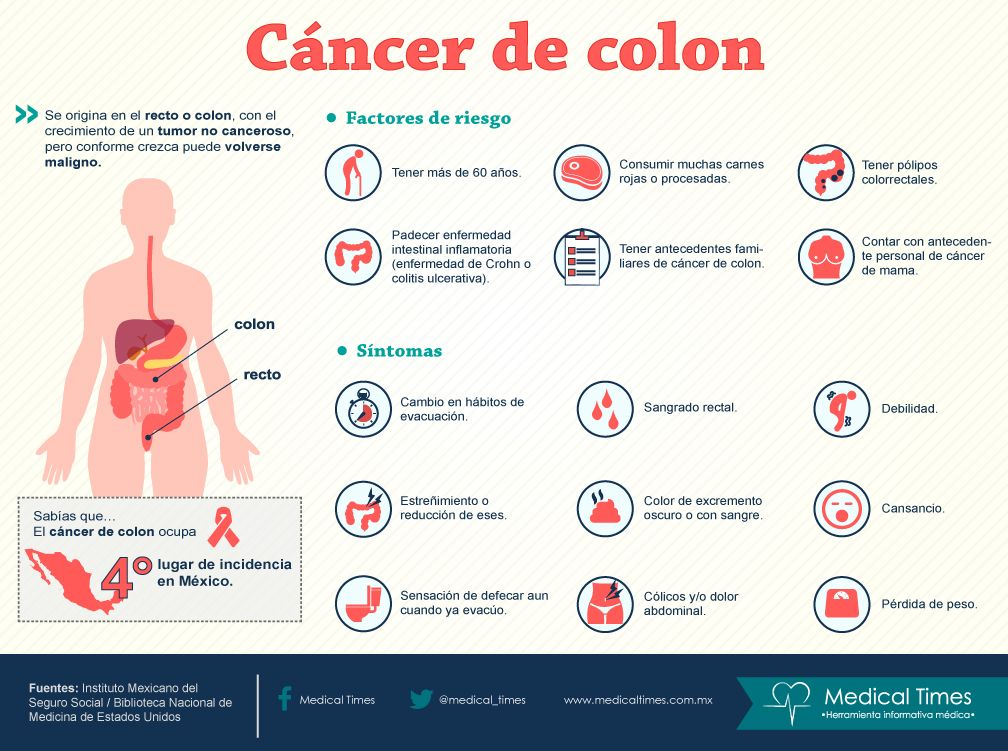 Medical Times: Cáncer de colon, infografía médica
