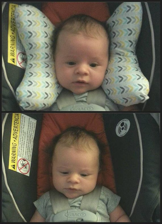 Infant Head Support - Torticollis - Positional Plagiocephaly ...