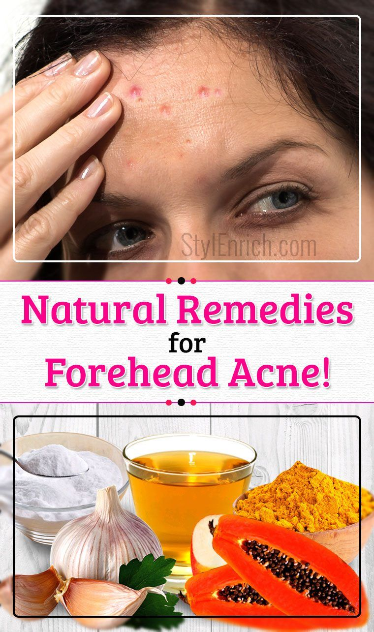 How to Get Rid Forehead Acne Forehead acne, Acne, How to