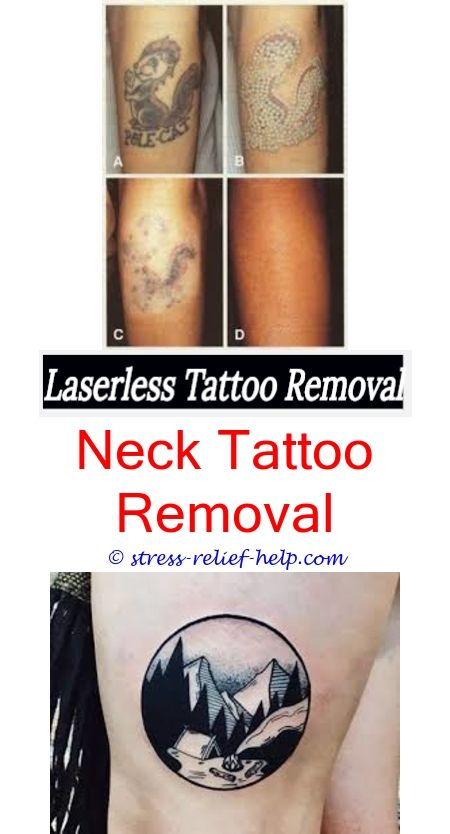 easy tattoo removal tattoo removal mn cost - fastest way to remove a ...
