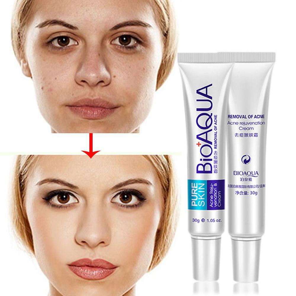Bioaqua 30g Anti Acne Cream Oil Control Shrink Pores Acne Scar Remove Face Care Skin Care Jarrebnnee W Face Skin Care Acne Acne Scar Removal Acne Cream