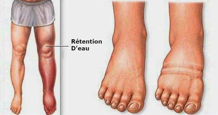 pies hinchados cuando hace calor