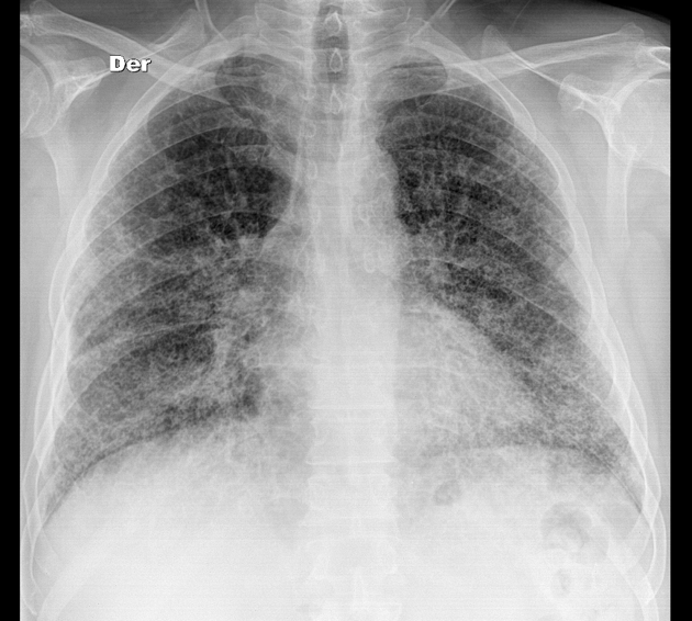 Interstitial Lung Disease X Ray Usual interstitial pne...