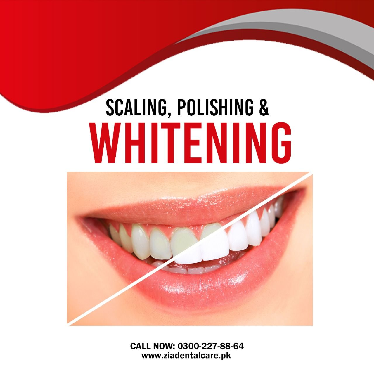 Pin On Cosmetic Dentistry