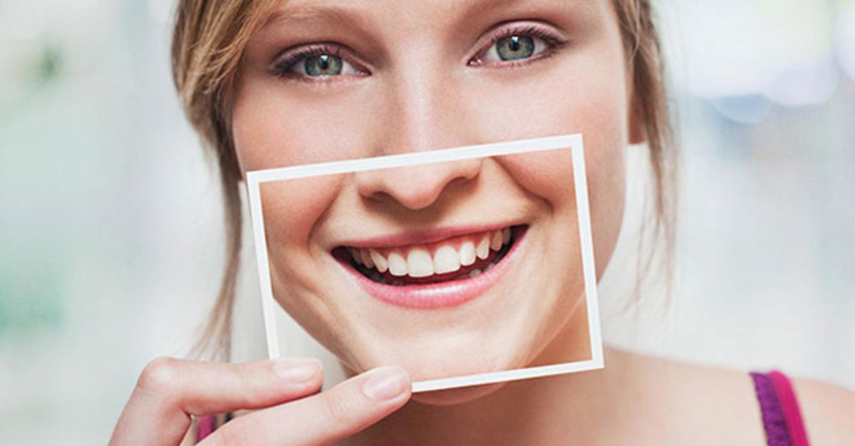 6 Mitos E Verdades Sobre Clareamento Dental Que Voce Precisa Saber