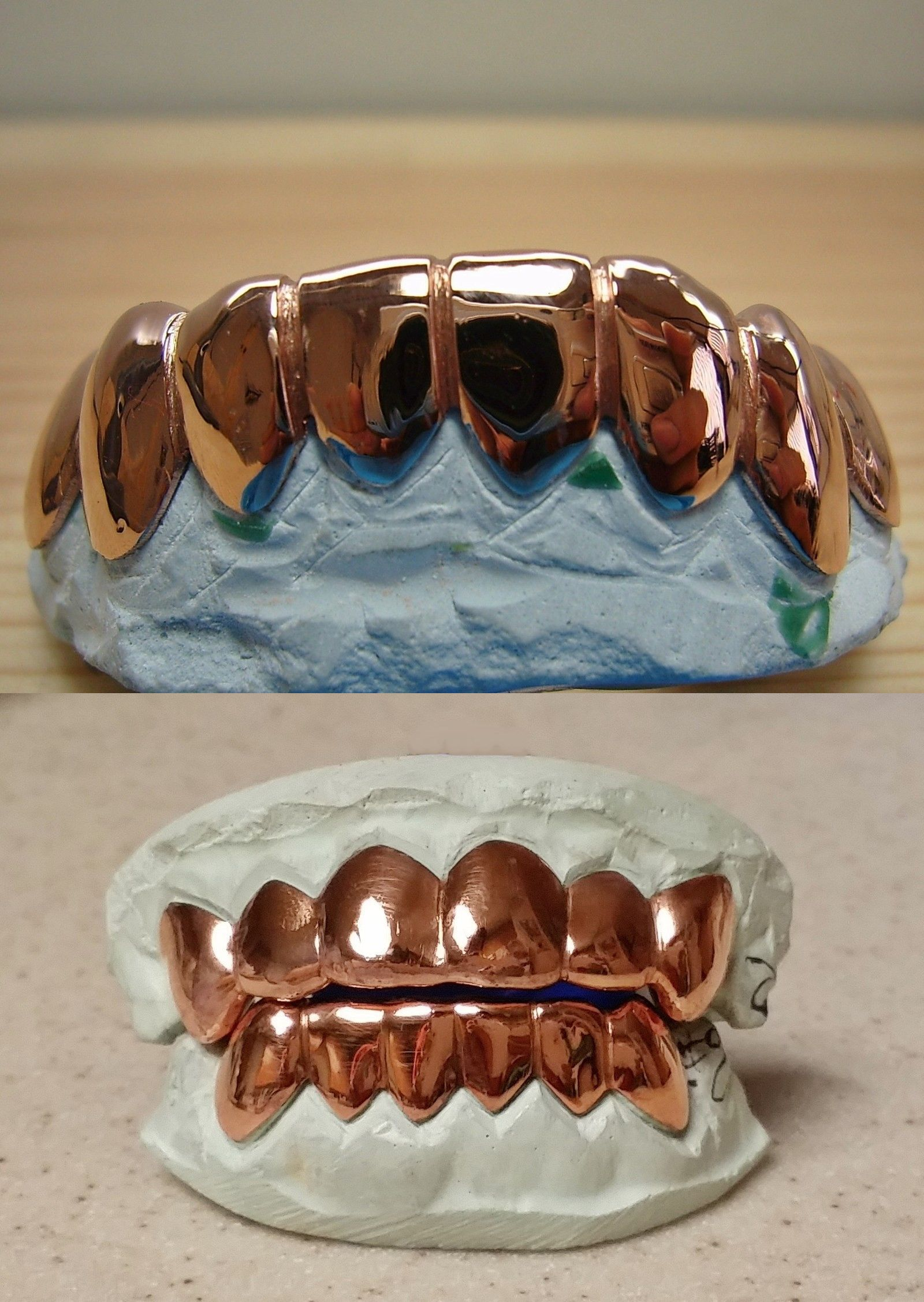 Grillz Dental Grills 152808 10k Or 14k Solid Rose Gold Custom Made Plain Grill Grillz Buy It Now Only 300 0