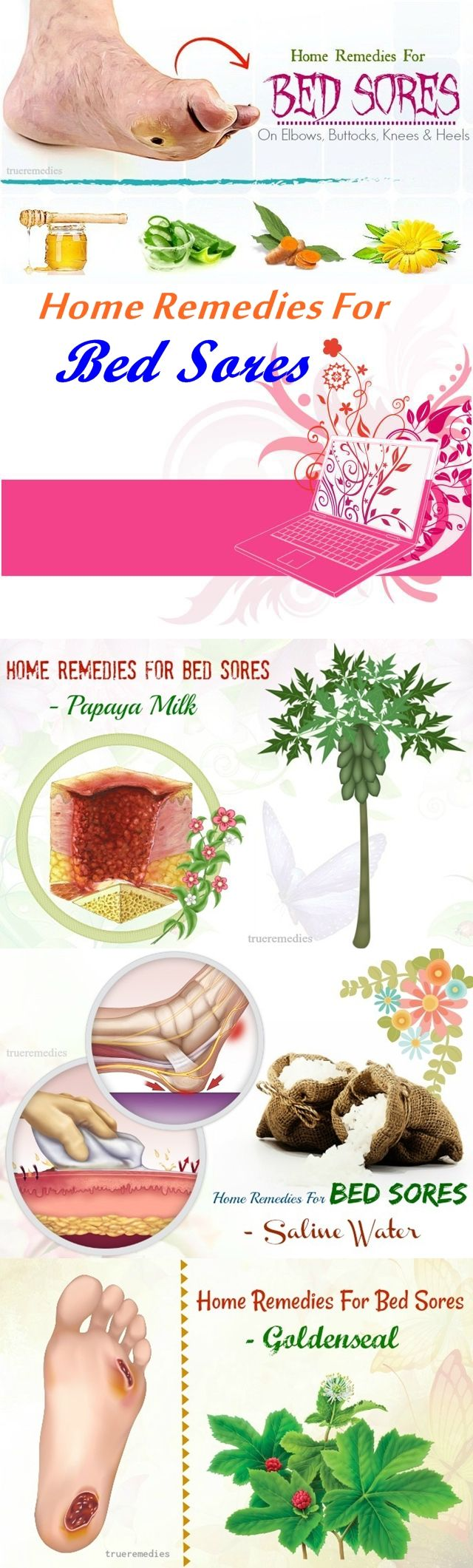 16 Home Remedies For Bed Sores On Elbows, Buttocks, Knees