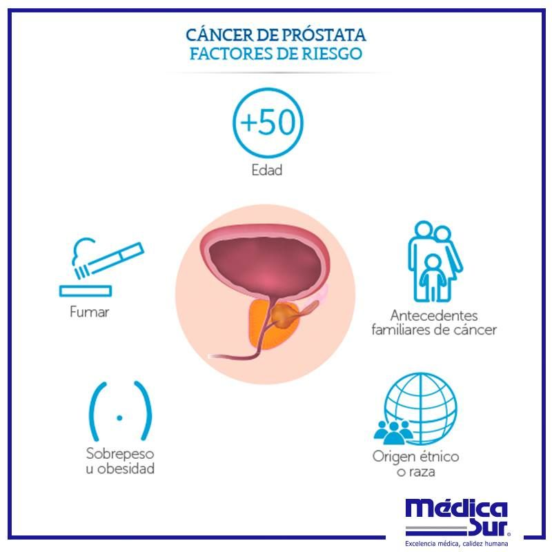 Datos rápidos sobre el cáncer de próstata