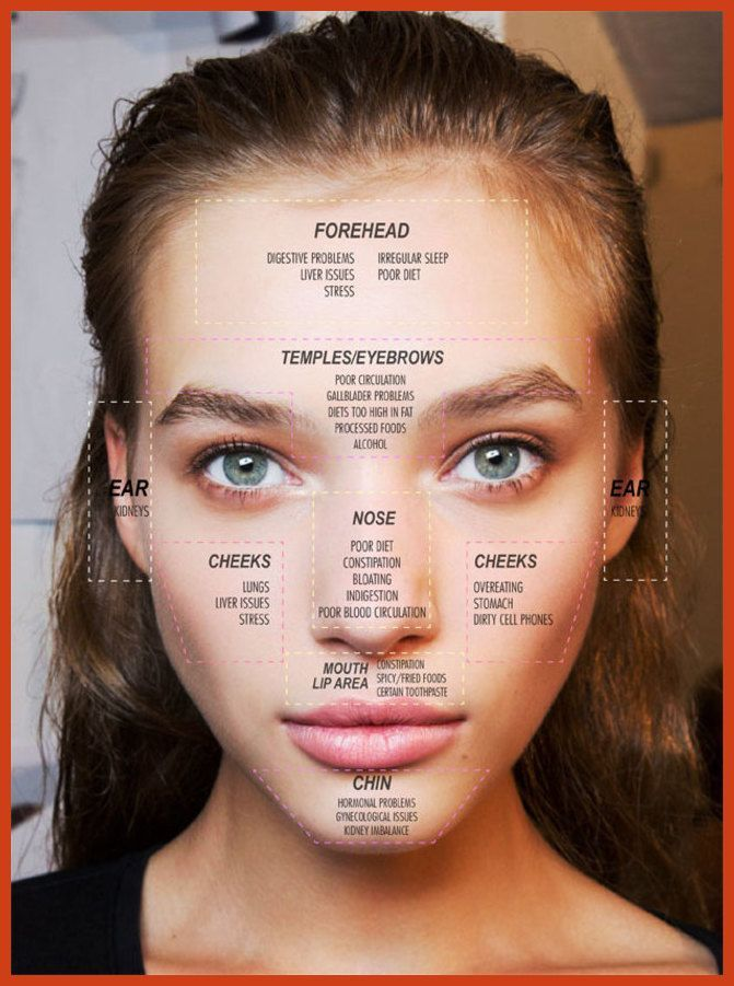 Homemade Acne Treatment - Holistic Acne Treatment Secrets - How to Get Clear Skin in Just 7 Days Using Proven Holistic Methods >>> More info could be found at the image url. #hormonalacne #acnetips