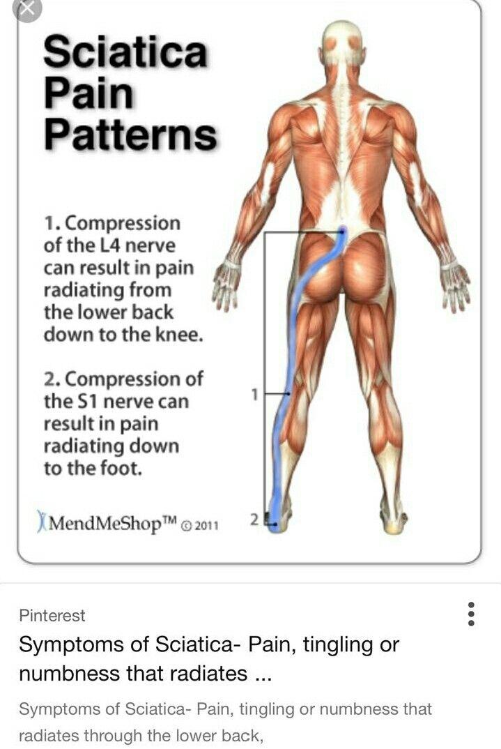 16++ Sciatica pain behind knee ideas in 2021