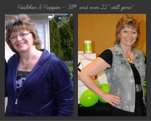 Laser weight loss treatment in pune picture 6