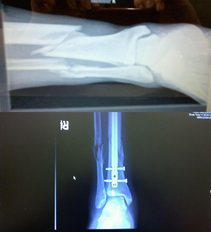 Tib/fib fx from a semi pro football game. Before and after. Thanks ...