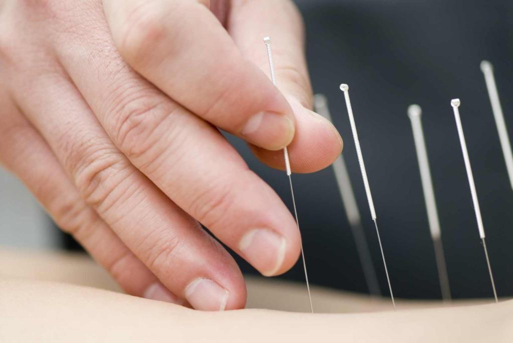 قراءة كتاب العلاج بالابر الصينية اون لاين Acupuncture Benefits Dry Needling Acupuncture