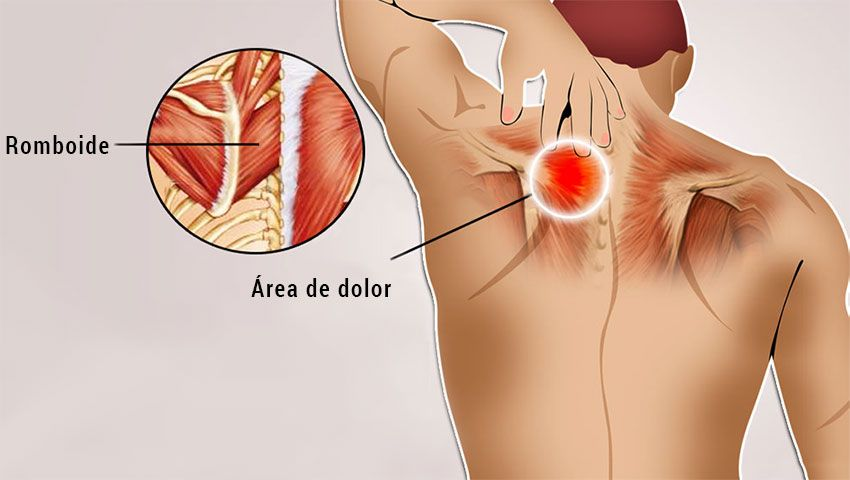 dolor pectoral derecho muscular