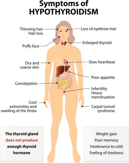 Hashimoto's Disease: Your Guide For Living With ...