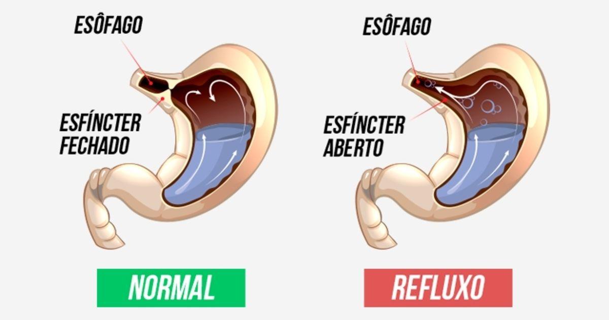 5 Remedios Caseiros Para Combater O Refluxo E A Acidez Do Estomago