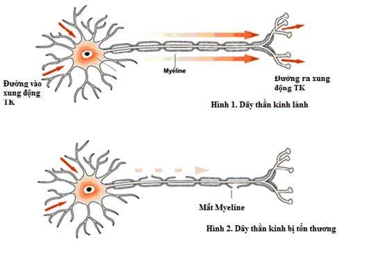 Liệt cơ tức thời bởi hội chứng Guillain - Barré   Bác sĩ Lê Trần Vinh Trưởng Khoa Nội thần kinh Bệnh viện Quận Thủ Đức cho biết bệnh nhân nhập viện trong tình trạngtê hai bàn tay chân rối loạn cảm giác mất phản xạ gân cơ. Các triệu chứng ngày càng tăng dần chỉ vài ngày sau bệnh nhân liệt dây thần kinh số 7 hai bên méo mặt liệt cơ hầu họng không nuốt được yếu dần tứ chi.  Kết quả chọc dịch não tủy và đo điện cơ xác định bệnh nhân mắc hội chứng Guillain - Barré một rối loạn hiếm gặp trong đó…