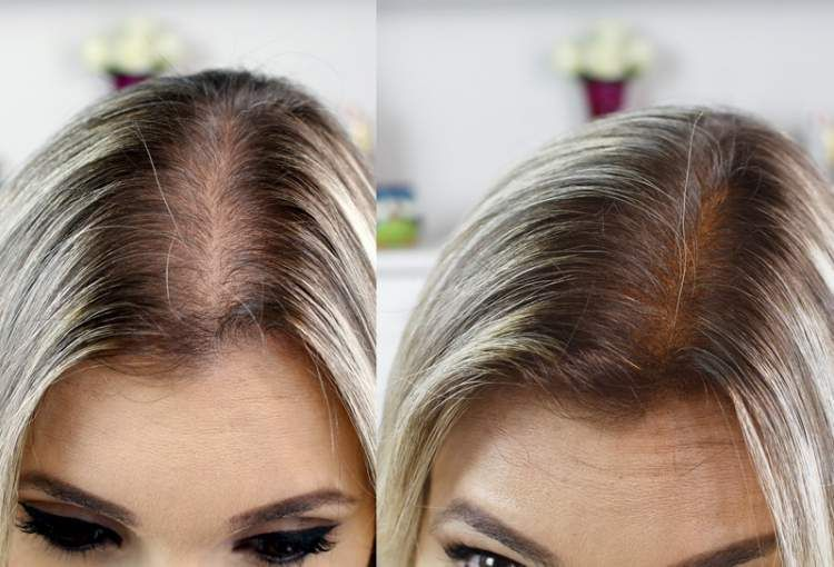 Minoxidil para queda de cabelo rapunzel evidncia de que o minoxidil funciona para combater a queda de cabelo fandeluxe Choice Image