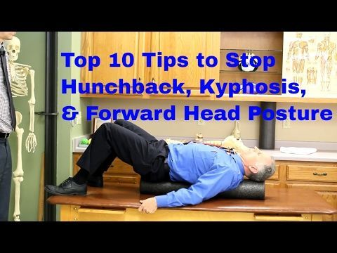 top 10 exercises to stop hunchback kyphosis forward head