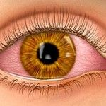Photo of Rimedi domestici per Pink Eye