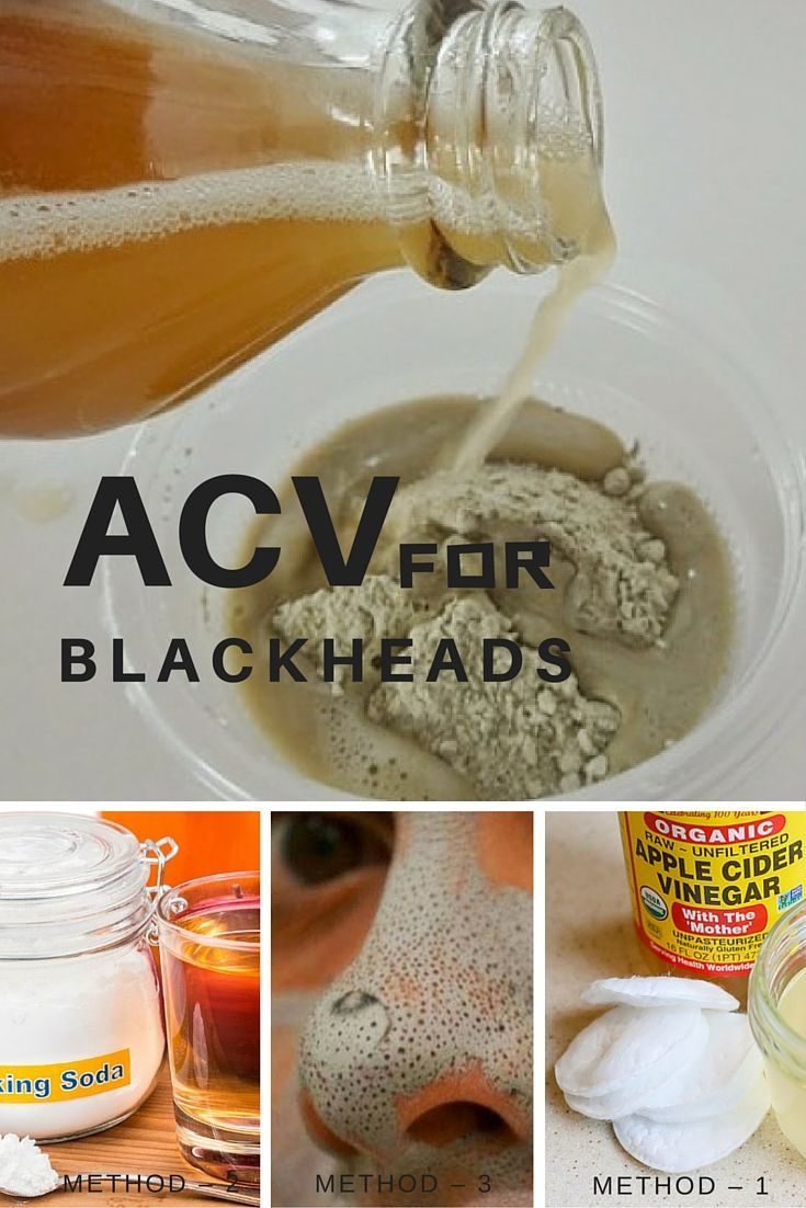 How to remove blackheads with apple cider vinegar Apple cider vinegar remedy for blackheads images