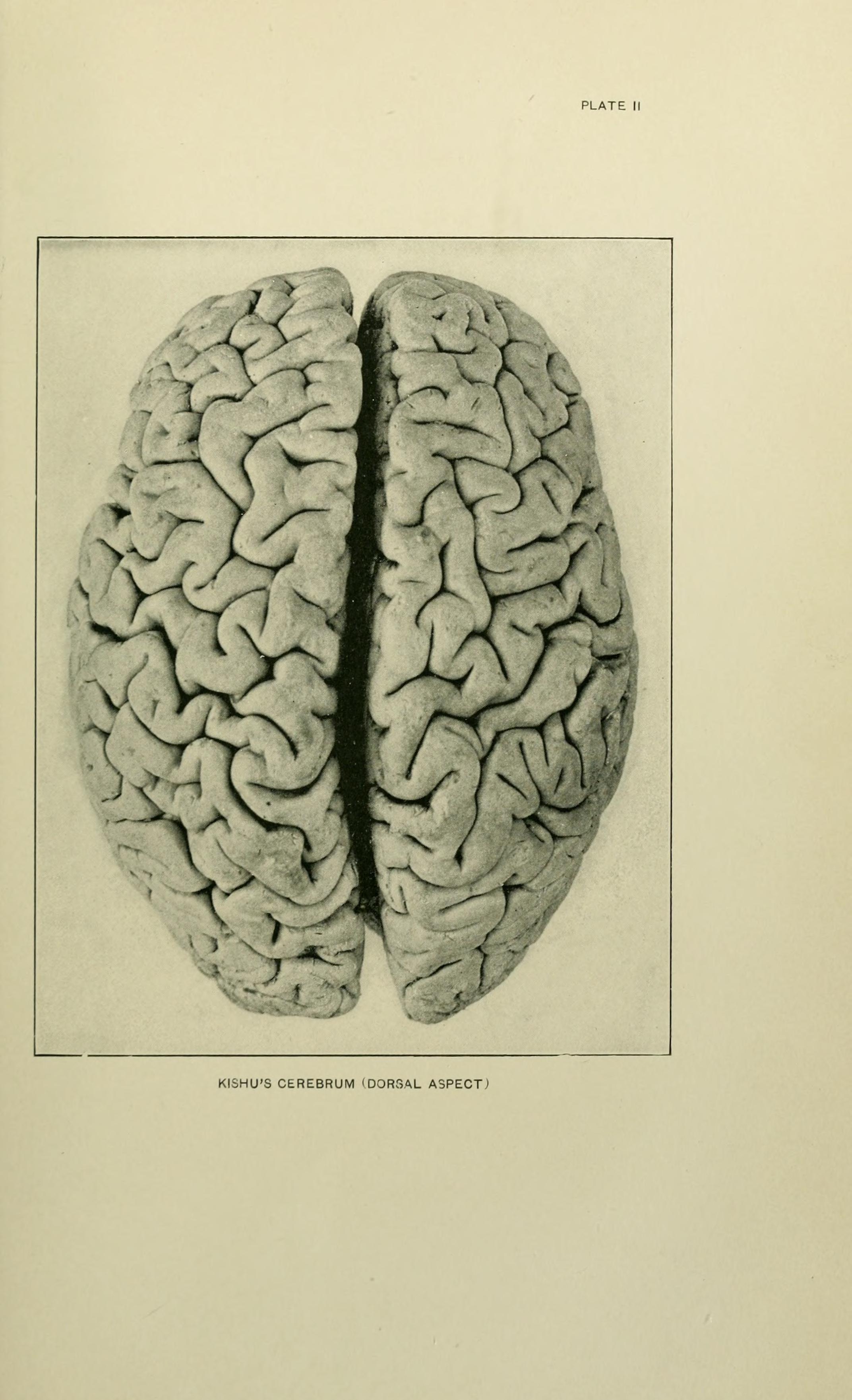 vintage anatomy - Kishu\'s cerebrum (Eskimo brain), dorsal aspect ...