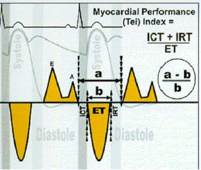 myocardial performance index (MPI) | Medicine | Cardiac sonography