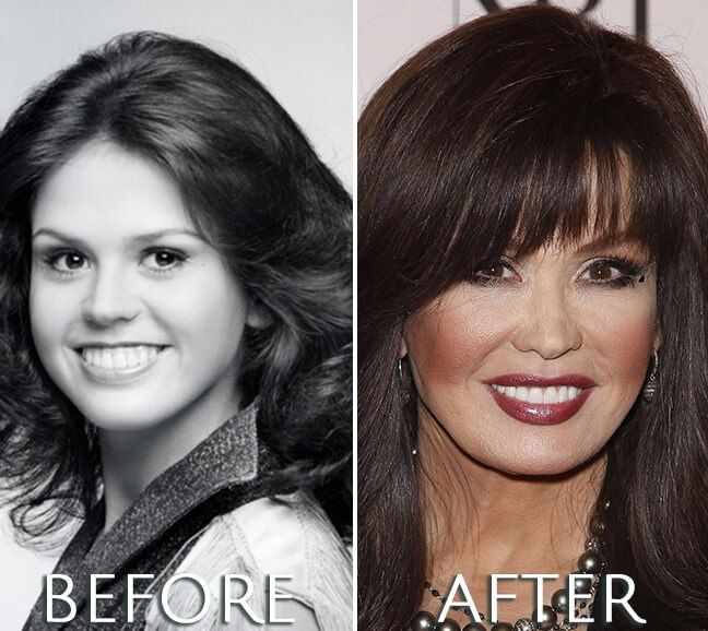 Marie Osmond plastic surgery transformation | Marie Osmond Before ...
