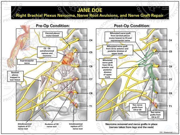 Brachial Plexus Injury- Good diagram of the different
