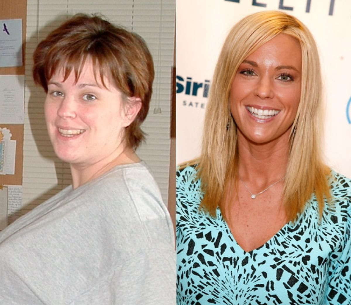 Kate gosselin photos celebs who had plastic surgery