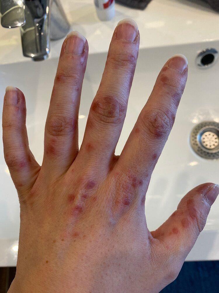 Hand Mund Fuß Krankheit Arbeitsverbot