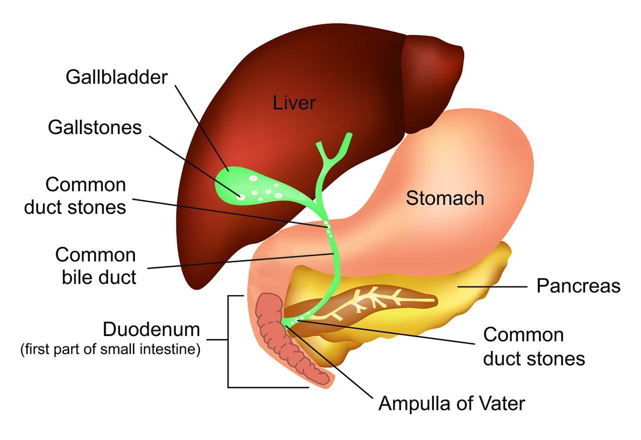 Obstruction To The Common Bile Duct By Common Duct Stones May Cause