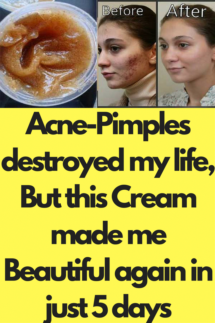 AcnePimples destroyed my life But this Cream made me Beautiful