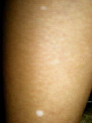 Unexplained White Spots On Your Skin This Could Be Why White Skin Spots Skin Spots Skin Age Spots