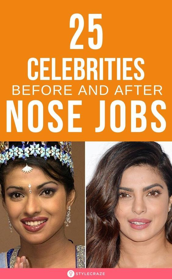 Photo of Top 25 celebrities before and after plastic surgery and nose jobs