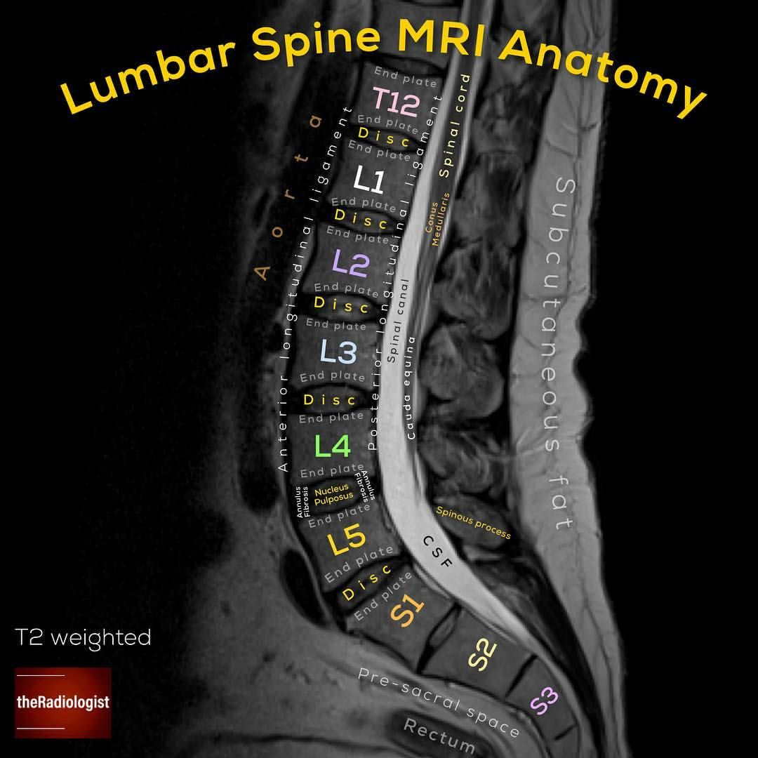 Sagittal T2 Weighted Image Of An Mri Of The Lumbar Spine