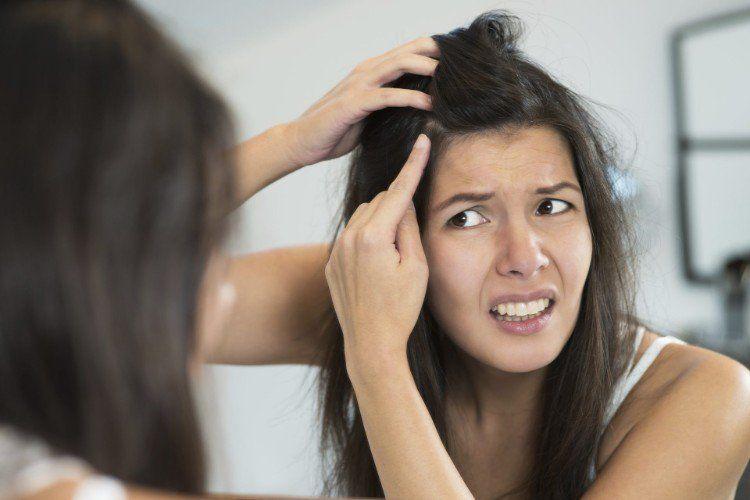 Traitement Pellicule En 11 Remedes Naturels Et Sains A Tenter Chez Vous Hausmittel Gegen Schuppen Juckende Kopfhaut Haarmittel
